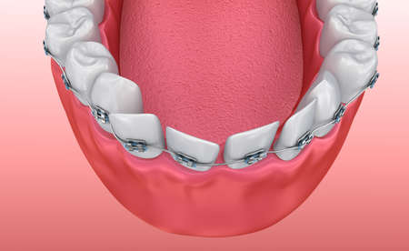 bracket: Teeth with braces isolated on white. Medically accurate 3D illustration