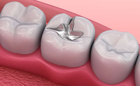 Metall dental fillings, Medically accurate 3D illustration 스톡 콘텐츠