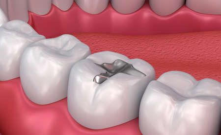 Metall dental fillings, Medically accurate 3D illustration Stock Photo