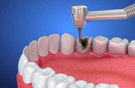 Removing the caries. Medically accurate tooth 3D illustration