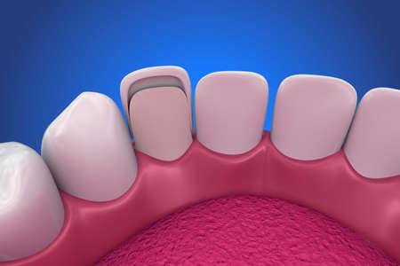 치과 용 베니어 : 도자기 베니어 설치 절차. 3D 일러스트 레이션