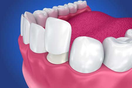 치과 용 베니어 : 도자기 베니어 설치 절차. 3D 일러스트 레이션 스톡 콘텐츠 - 85681777