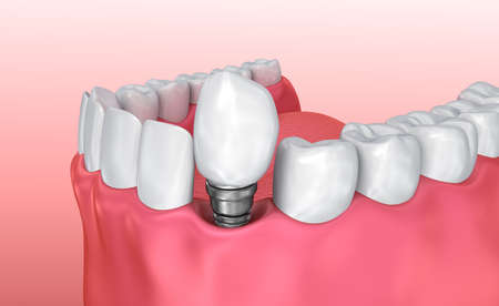 Tooth implant instalation process, Medically accurate 3D illustration white style Stock Photo