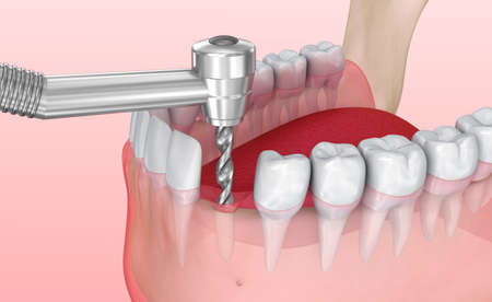 Tooth implant installation process, Medically accurate 3D illustration Stock Photo