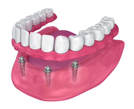 Overdenture to be sealed on implants - ball attachments. 3D illustration