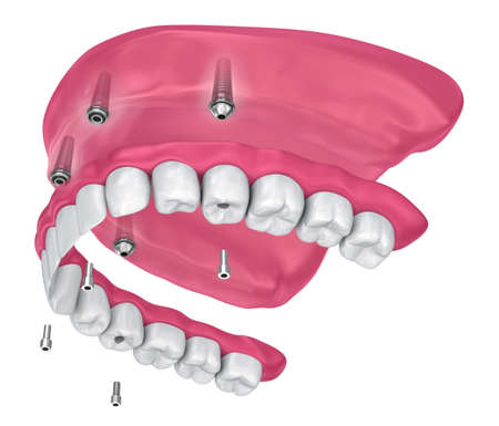 Overdenture to be sealed on implants attachments. 3D illustration