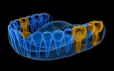 X-ray view of denture with implants. Xray view. Medically accurate 3D illustration