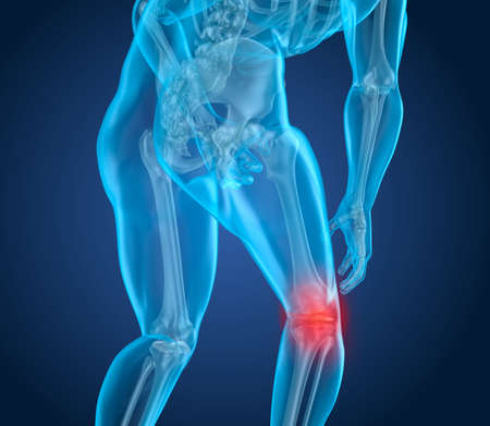 Knee pain Attack, man suffering from spinal knee. 3D illustration
