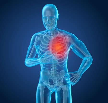 Heart Attack, uomo che soffre di dolori al cuore. Illustrazione 3D Archivio Fotografico
