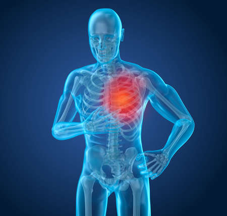 Heart Attack, man suffering from heart pain. 3D illustration