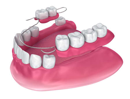 Removable partial denture. Medically accurate 3D illustration Imagens - 98343609
