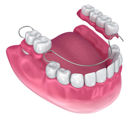 Removable partial denture. Medically accurate 3D illustration Imagens - 98343611
