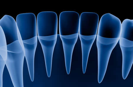 Transparent teeth scan, xray view. 3D illustration.