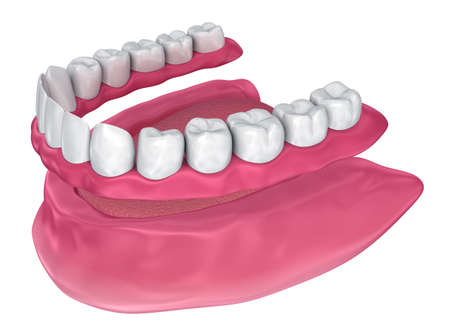 All missing teeth - removable full denture. 3D illustration
