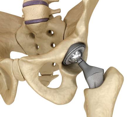 Impianto di sostituzione dell'anca installato nell'osso pelvico. Illustrazione 3D medicalmente accurata Archivio Fotografico