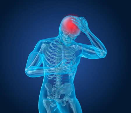 Head pain Attack, man suffering from brain pain. 3D illustration Stock Photo
