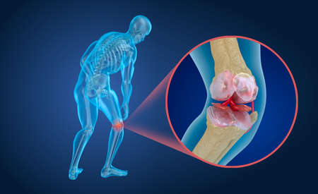 Osteoporosis of the knee joint, Medically accurate 3D illustration Stock Photo