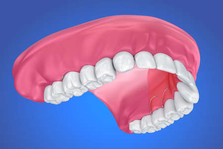 Single Missing Tooth - Removable partial denture .  3D illustration Stock Photo