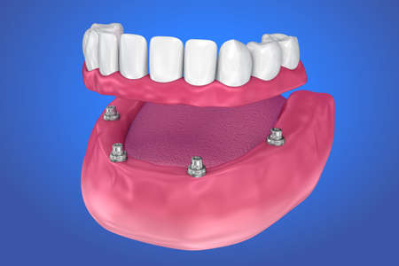 Fixed bridge on implants. Medically accurate 3D illustration