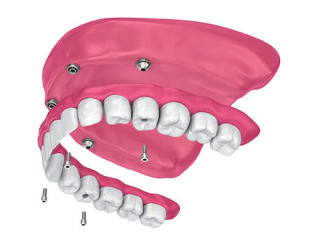Overdenture to be seated on implants attachments. 3D illustration