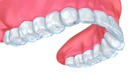Diagnostic Mockup. Medically accurate tooth 3D illustration