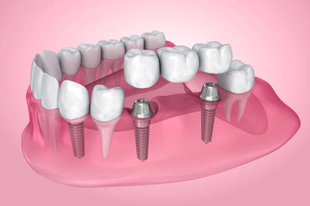 implant supported fixed bridge. Transparent view . Medically accurate 3D illustration