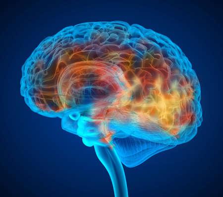 Human brain tumor X-ray scan , Medically accurate 3D illustration Reklamní fotografie