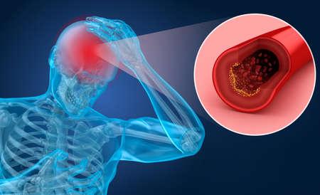 Accidente cerebrovascular: ilustración 3d de los vasos del cerebro y las causas del accidente cerebrovascular Foto de archivo