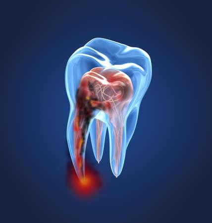 Röntgenaufnahme der beschädigten Zähne. Medizinisch genaue Zahn-3D-Darstellung Standard-Bild