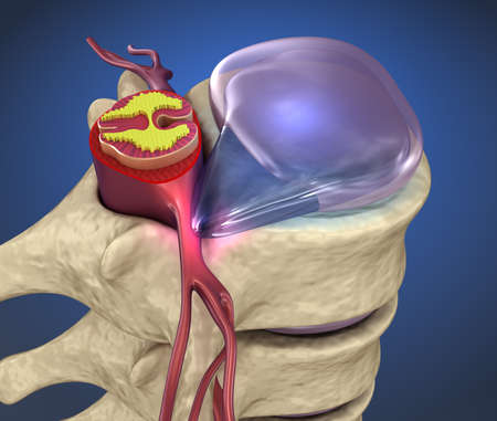 Spinal cord under pressure of bulging disc, 3d illustration
