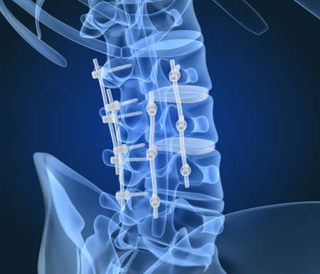 Spinal fixation system - titanium bracket. X-Ray 3D illustration