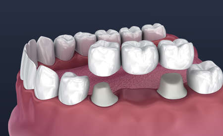 Tooth supported fixed bridge of 3 teeth. Medically accurate 3D illustration Stock Illustration - 114009981