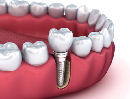 Tooth implant instalation process , Medically accurate 3D illustration Standard-Bild - 114009984