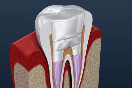 Dental fillings procedure diagramm . 3D illustration Stock Photo