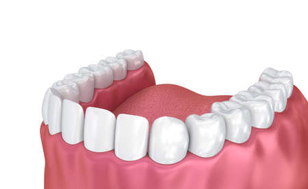 Mouth gum and teeth. Medically accurate tooth 3D illustration Standard-Bild - 114010323