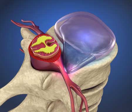 Hernaited disc in human spine in details 版權商用圖片