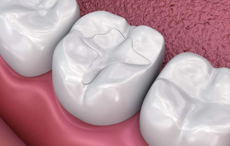 Zahnfissurenfüllungen, medizinisch genaue 3D-Illustration