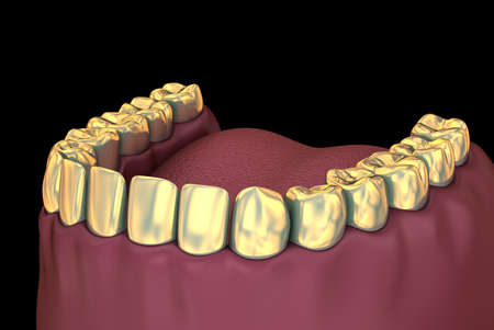 Gloden crowns over teeth, 3D illustration Stock Photo