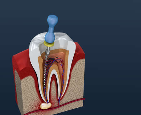 Root canal treatment process. 3D illustration