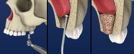 Sinus Lift Surgery - Sinus Augmentation. 3D illustration Stock Photo