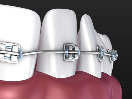 Teeth with braces isolated on white. Medically accurate 3D illustration Standard-Bild - 123150691