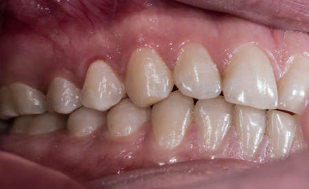 Healthy human teeth with normal occlusion from side view