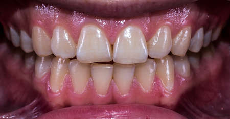 Healthy human teeth with normal occlusion from frontal view Stock Photo