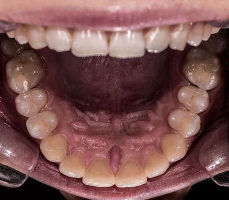Healthy human maxillary teeth and palate, intraoral view from bottom