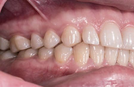 Healthy human teeth with normal occlusion from side view Stock Photo