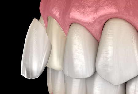 Dental Veneer: Central incisor Veneer installation Procedure. Medically accurate tooth 3D illustration
