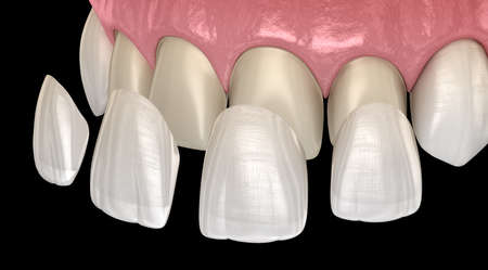 Veneer installation procedure over central incisor and lateral incisor. Medically accurate tooth 3D illustration