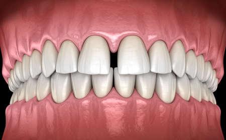 Diastema der mittleren Schneidezähne. 3D-Illustrationskonzept der Zahnfehlfunktion