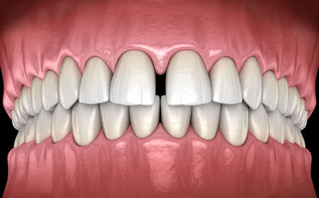 Diastema of central incisors teeth. Dental disfunction 3D illustration concept Фото со стока