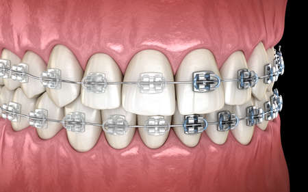 Teeth with metal and Clear braces in gums. Medically accurate dental 3D illustration Banco de Imagens